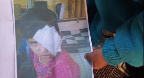 """خاص لـ""""وطن"""": بالفيديو.. غزة: أربعة من عائلة فقيرة يبتلون بـ""""السرطان"""""""