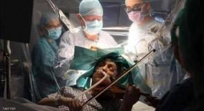 تعزف الكمان أثناء خضوعها لجراحة في المخ!!