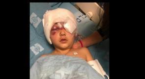 """نائبان في الكنيست عن """"القائمة المشتركة"""" يطالبان بفتح تحقيق حول إصابة الطفل مالك عيسى من العيساوية"""