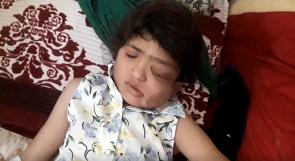 بعد تقرير لـوطن.. الطفلة المدني على سلم الشفاء!