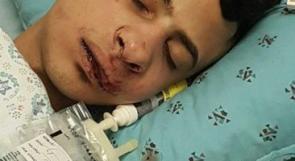المقدسي مصطفى المغربي بعد اعتداء المستوطنين عليه