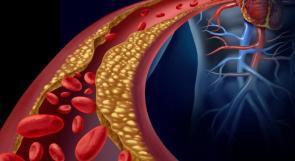 دراسة: 4 ملاعق كبيرة من زيت الذرة في اليوم قد تخفض الكوليسترول في الدم!