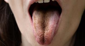 اللسان يمكن أن يكشف عن نقص معدن هام في الجسم