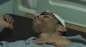 مدى: قوات الاحتلال واصلت استهدافها للصحفيين خلال الشهر الماضي