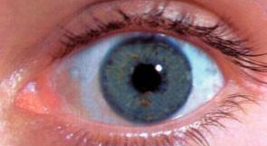 دراسة تحيي الأمل في علاج العمى