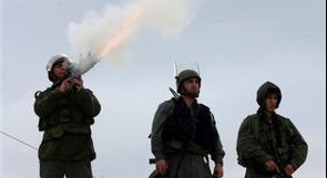 مواجهات بين شبان وقوات الاحتلال في طولكرم