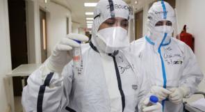 الاردن:  9 حالات وفاة و730 إصابة جديدة بفيروس كورونا