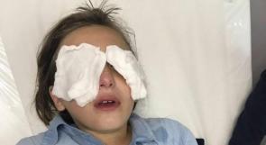 أم الفحم: اصابات في صفوف أطفال بعد رشهم بغاز الفلفل عقب مغادرة المدرسة