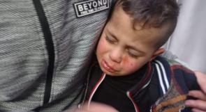 مستوطنون يصيبون الطفل جاد صوافطة بجروح على مدخل برقة شمال شرق رام الله