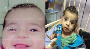 الرضيع حسن، يفقد السمع والبصر بعد علاج في مشفى حكومي