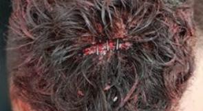 مستوطنون يعتدون على شبان من شفا عمرو بالداخل المحتل