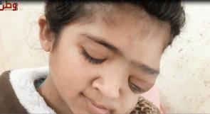 أفقدها السرطان ملامحها الجميلة.. الطفلة انشراح تناشد الرئيس عبر وطن لمساعدتها