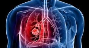 """خاص لـ""""وطن"""": بالفيديو.. طولكرم: الانبعاثات من المصانع الكيماوية ترفع نسبة مصابي سرطان الرئة"""