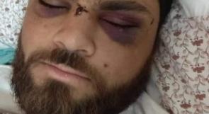 المحرر محمد السلايمة.. حالته تفضح وحشية القمع الذي تعرض له أسرى قسم 4 في النقب قبل أيام