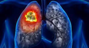 10 تغيرات في الجسم قد تكون علامات منذرة بسرطان الرئة