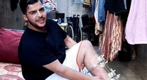 الجريح خضر أبو حماد يناشد الرئيس عبر وطن: ستبتر قدمي إن لم أحول للعلاج!