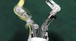 سرطان بحر آلي لإزالة سرطان المعدة