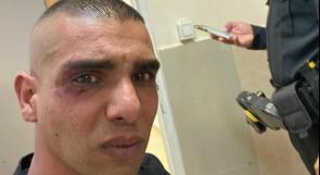 مستوطنون يعتدون بالضرب والطعن على شاب في الخضيرة المحتلة