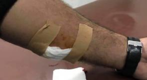"""إصابة شاب برصاص """"المستعربين"""" في بيتين شرق رام الله"""
