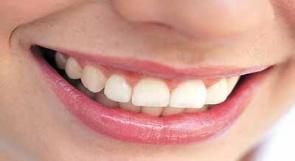 خلايا الأسنان الجذعية لإصلاح العمود الفقري