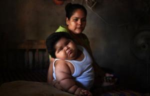 """عمره 10 شهور ويزن 28 كغم .. حالة """"أكبر طفل في العالم"""" الغامضة تحير الأطباء"""