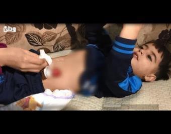 يُخرِجُ من بطنه.. عائلة الطفل عصام تستصرخ ضمائر المسؤولين لعلاج ابنها