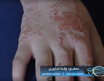الخضاب الحارق.. تحقيق استقصائي لـ وطن يكشف لغز الحناء المسببة لأمراض جلدية في أسواقنا