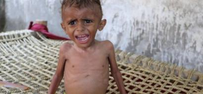 2 مليار دولار لتجنيب اليمن مجاعة محتمة