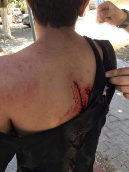بالصور| 3 إصابات بالطعن.. ماذا حدث في جامعة النجاح اليوم ؟!