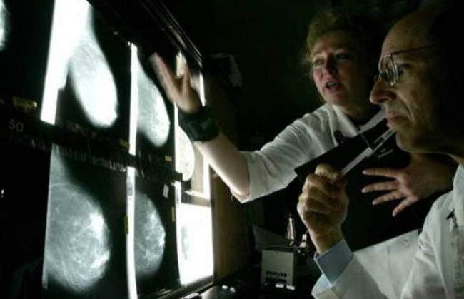 وداعاً للسرطان.. الماسح الضوئي البريطاني يدمر الأورام في 10 دقائق