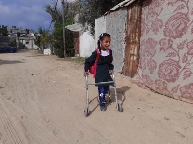 الإغاثة الطبية حققت نقلة نوعية في حياة الطفلة رجاء أبو خوصة في شمال غزة