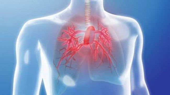 جينات تسبب ارتفاع ضغط الدم الشرياني الرئوي القاتل