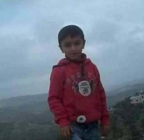 إصابة الطفل عبد الرحمن اشتيوي بالرصاص الحي في الرأس خلال قمع الاحتلال مسيرة كفر قدوم