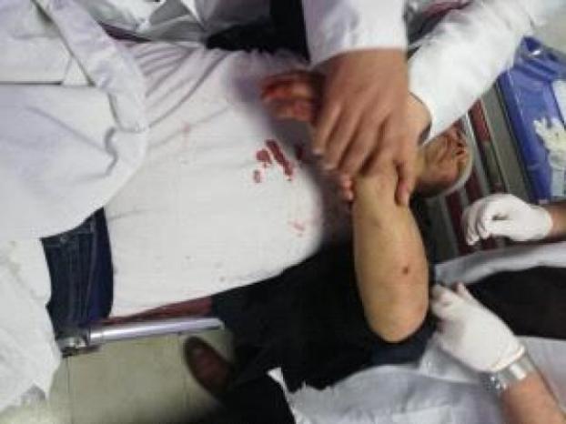 صور | إصابة الناطق باسم فتح عاطف أبو سيف بكسور جراء الاعتداء عليه في غزة