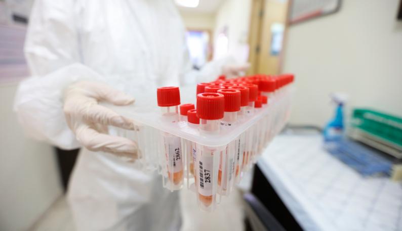 """15 وفاة و1422 إصابة جديدة بفيروس """"كورونا"""" و1030 حالة تعافٍ"""