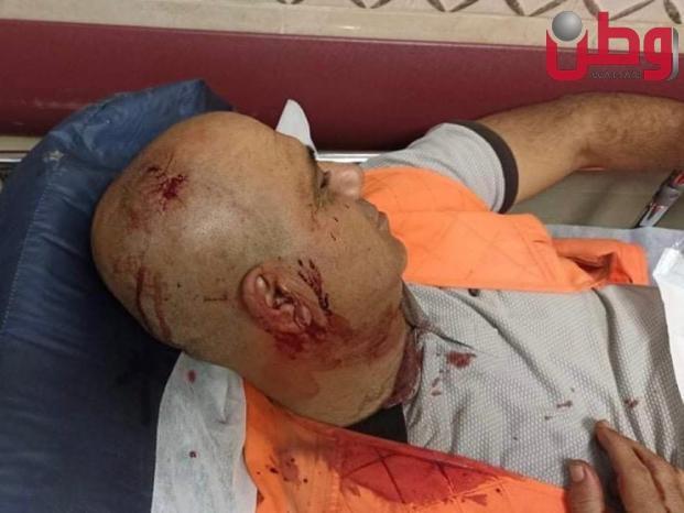 إصابات بينها صحفي خلال مواجهات مع الاحتلال شرق نابلس