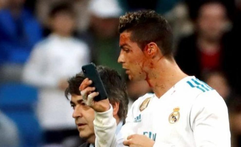 رونالدو يستعير هاتف الطبيب للتعرف على مدى إصابة وجهه